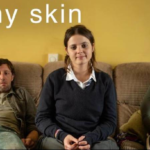 Hulu's British Binge-Cation: In My Skin